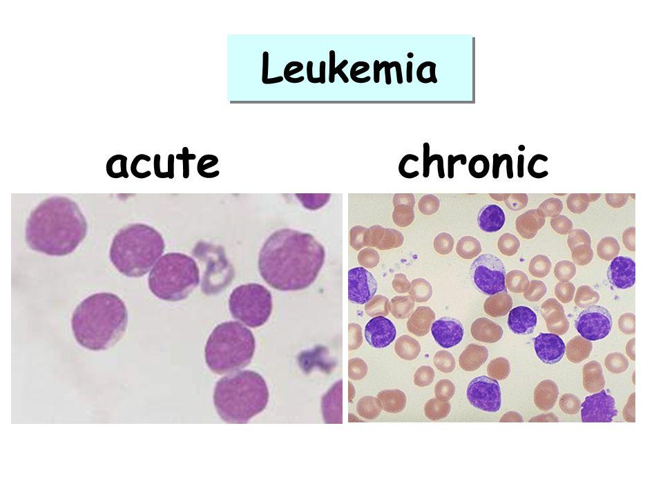 acutechronic Leukemia