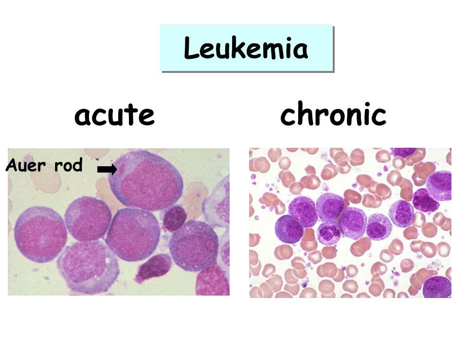 acutechronic Auer rod Leukemia
