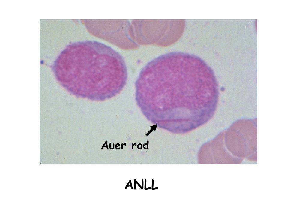 Auer rod ANLL
