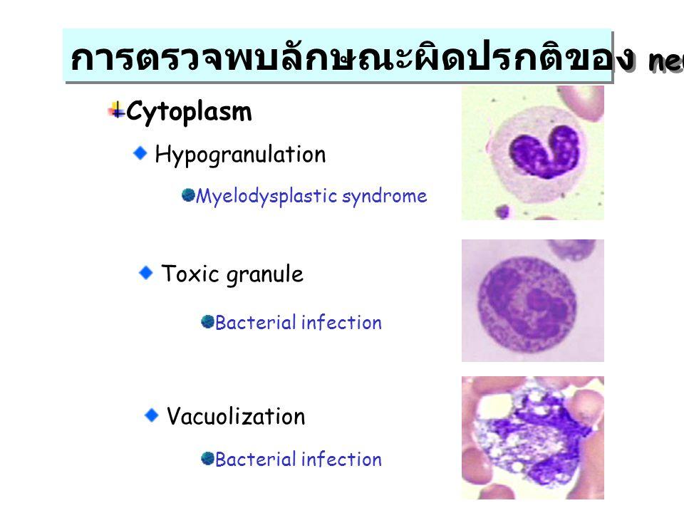 การตรวจพบลักษณะผิดปรกติของ neutrophil Cytoplasm Hypogranulation Toxic granule Vacuolization Myelodysplastic syndrome Bacterial infection
