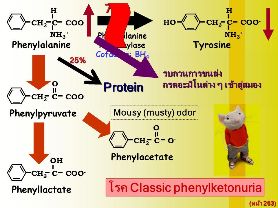 75% โรค Classic phenylketonuria CH 2 C COO - H NH 3 + HO Tyrosine Melanin Thyroxine Norepinephrin Epinephrin CH 2 C COO - H NH 3 + Phenylalanine CH 2