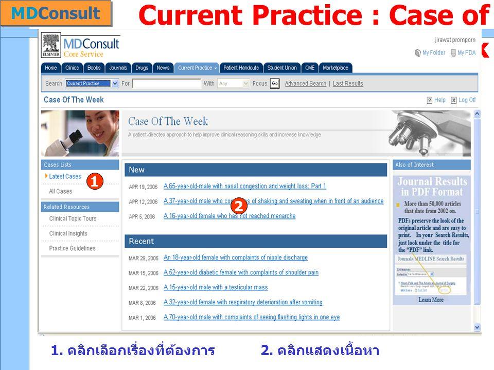 Current Practice : Case of the Week 1. คลิกเลือกเรื่องที่ต้องการ2. คลิกแสดงเนื้อหา 1 2 MDConsult