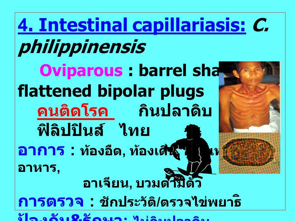 4. Intestinal capillariasis: C. philippinensis Oviparous : barrel shaped, flattened bipolar plugs คนติดโรค กินปลาดิบ ปลาซิว ฟิลิปปินส์ ไทย อาการ : ท้อ