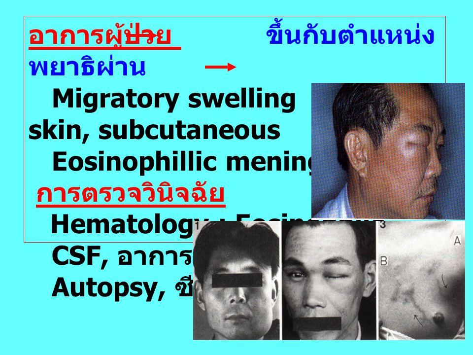 อาการผู้ป่วย ขึ้นกับตำแหน่ง พยาธิผ่าน Migratory swelling skin, subcutaneous Eosinophillic meningitis การตรวจวินิจฉัย Hematology : Eosinophile CSF, อาก