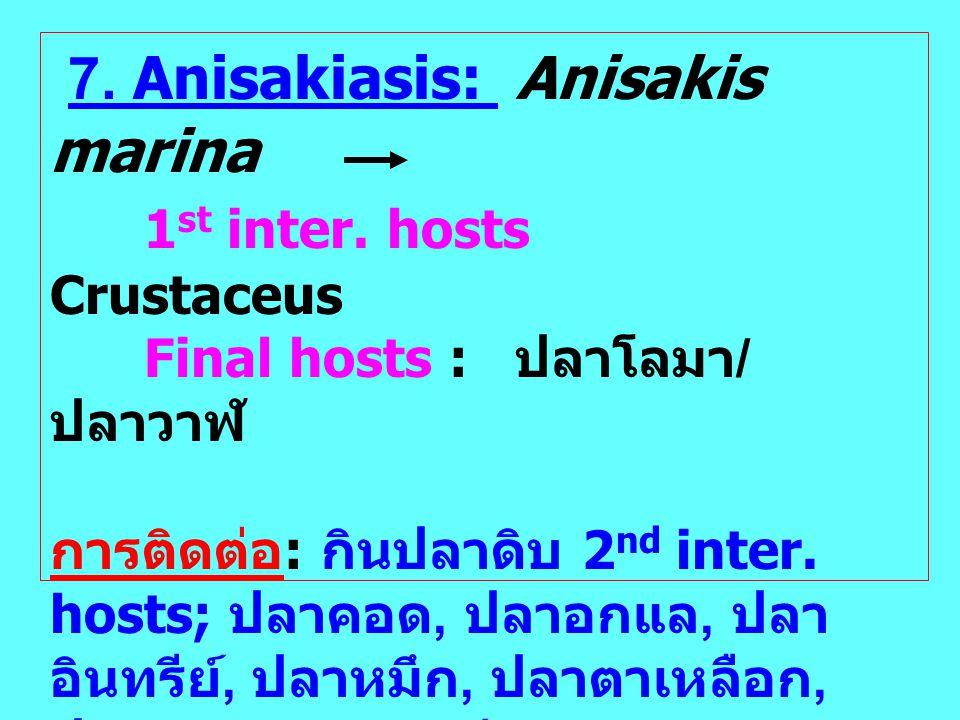 7. Anisakiasis: Anisakis marina 1 st inter. hosts Crustaceus Final hosts : ปลาโลมา / ปลาวาฬ การติดต่อ : กินปลาดิบ 2 nd inter. hosts; ปลาคอด, ปลาอกแล,