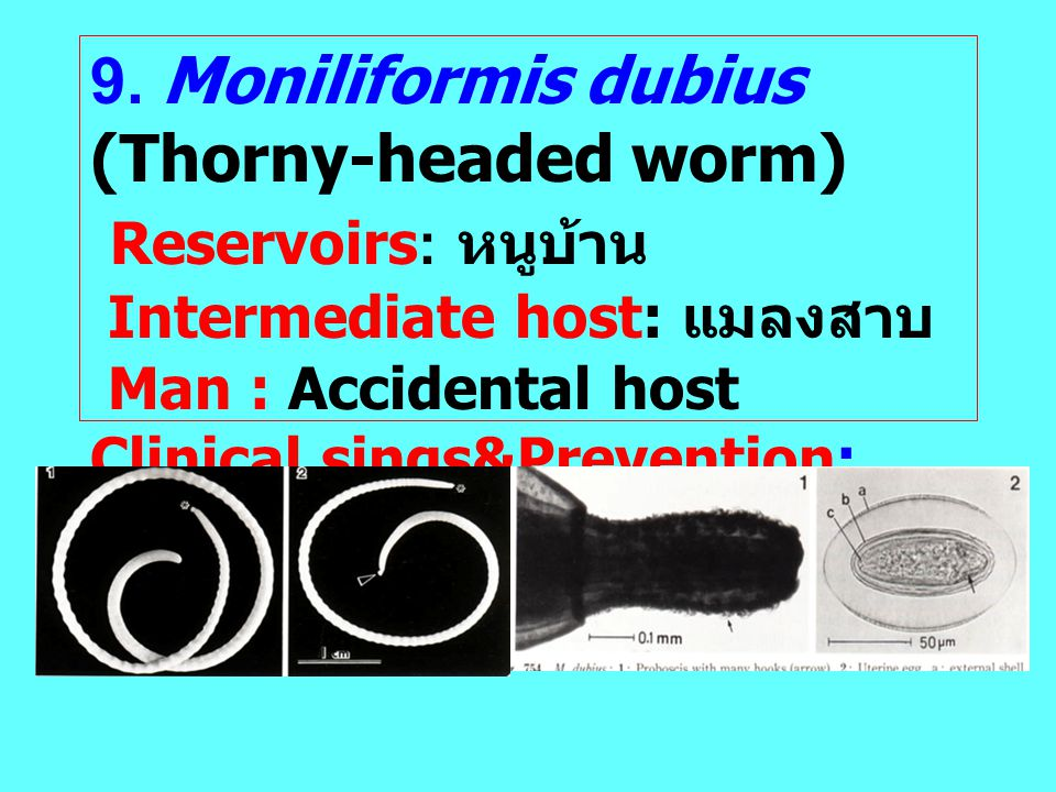 9. Moniliformis dubius (Thorny-headed worm) Reservoirs: หนูบ้าน Intermediate host: แมลงสาบ Man : Accidental host Clinical sings&Prevention; like M. hi