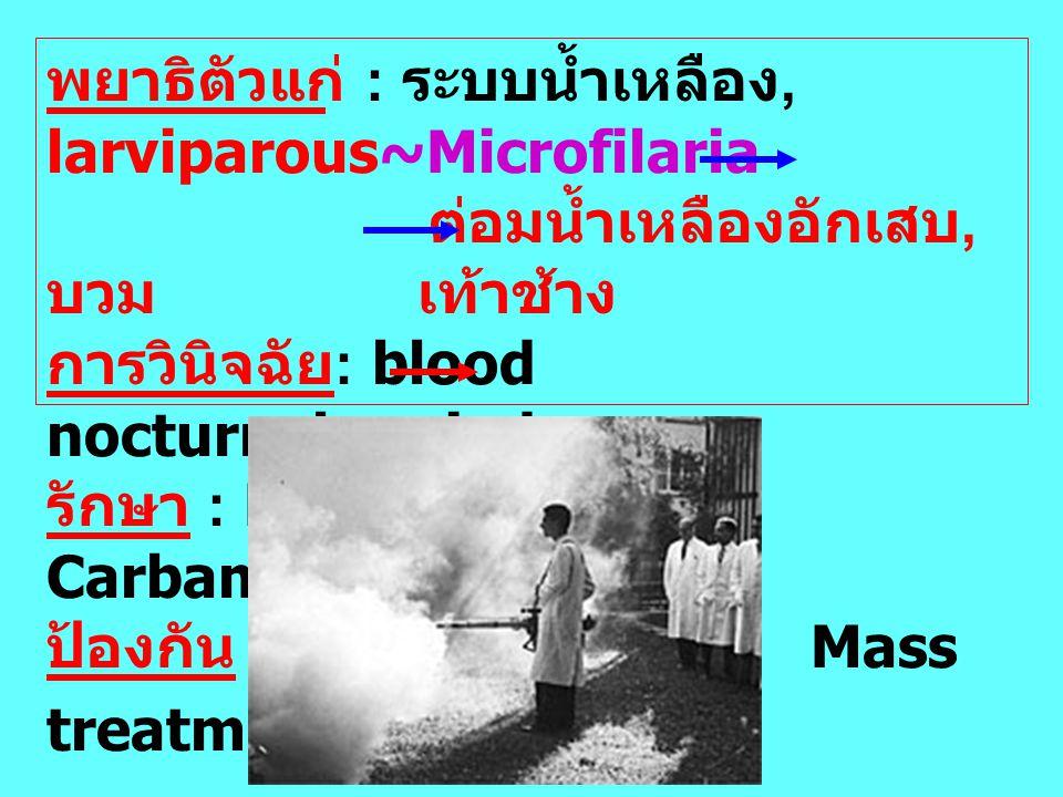 พยาธิตัวแก่ : ระบบน้ำเหลือง, larviparous~Microfilaria ต่อมน้ำเหลืองอักเสบ, บวม เท้าช้าง การวินิจฉัย : blood nocturnal period รักษา : Diethyl Carbamazi