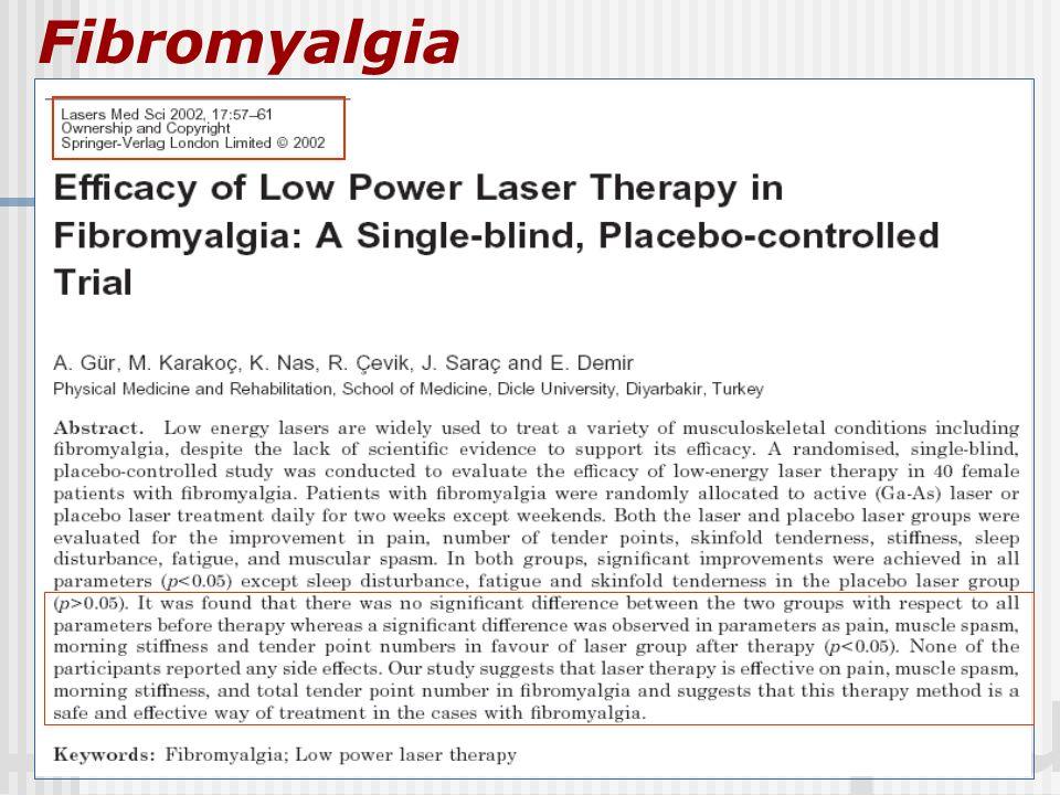 LASER: Therapeutic Fibromyalgia