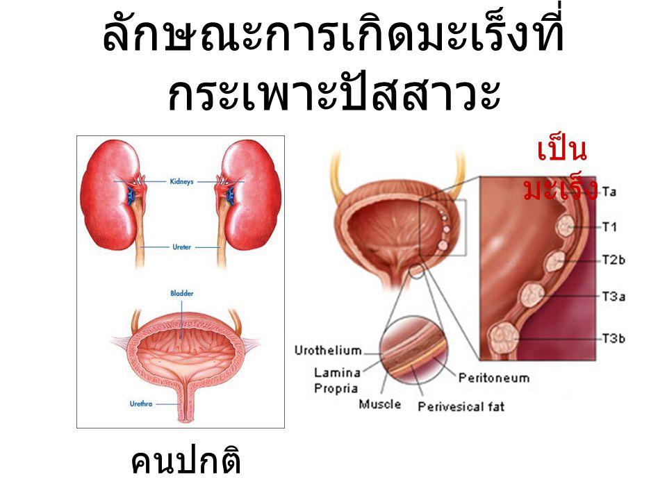 ลักษณะการเกิดมะเร็งที่ กระเพาะปัสสาวะ คนปกติ เป็น มะเร็ง