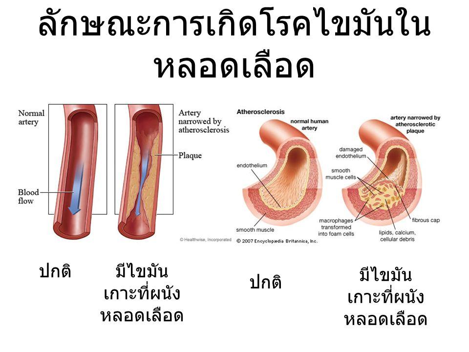 ลักษณะการเกิดโรคไขมันใน หลอดเลือด ปกติมีไขมัน เกาะที่ผนัง หลอดเลือด ปกติ มีไขมัน เกาะที่ผนัง หลอดเลือด