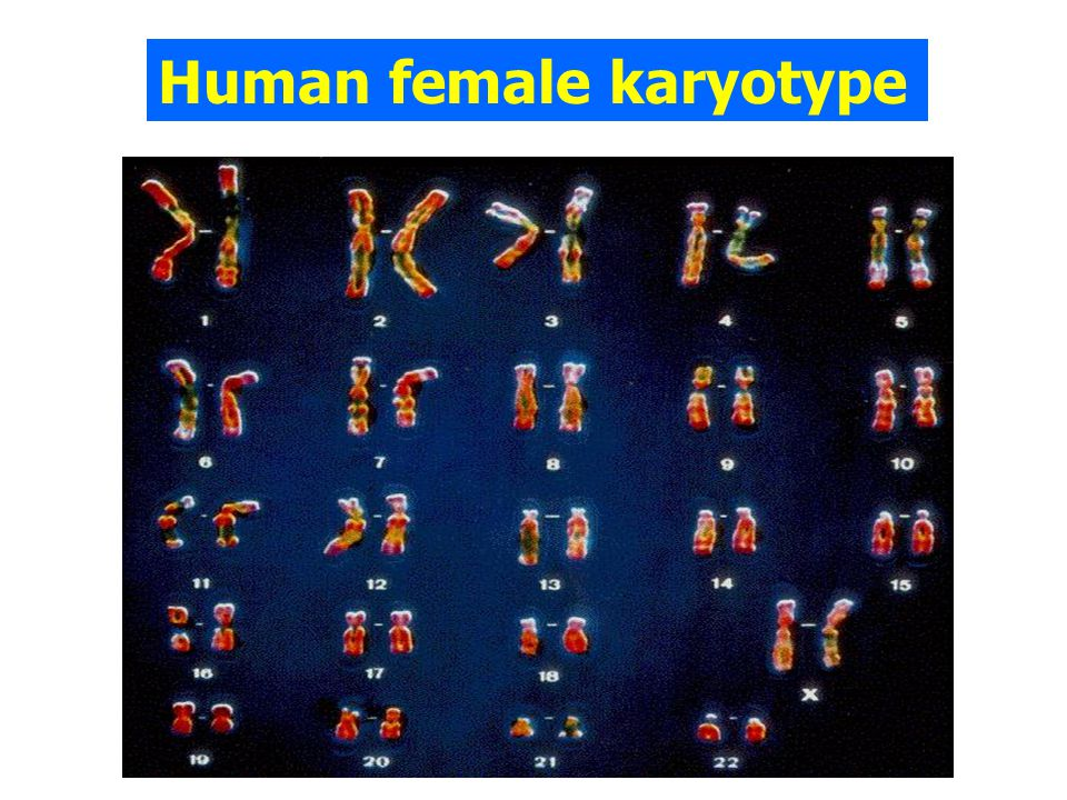Human female karyotype