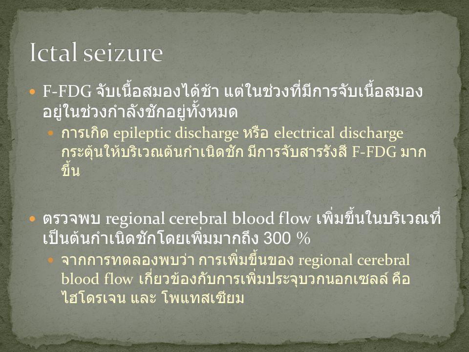  F-FDG จับเนื้อสมองได้ช้า แต่ในช่วงที่มีการจับเนื้อสมอง อยู่ในช่วงกำลังชักอยู่ทั้งหมด  การเกิด epileptic discharge หรือ electrical discharge กระตุ้น