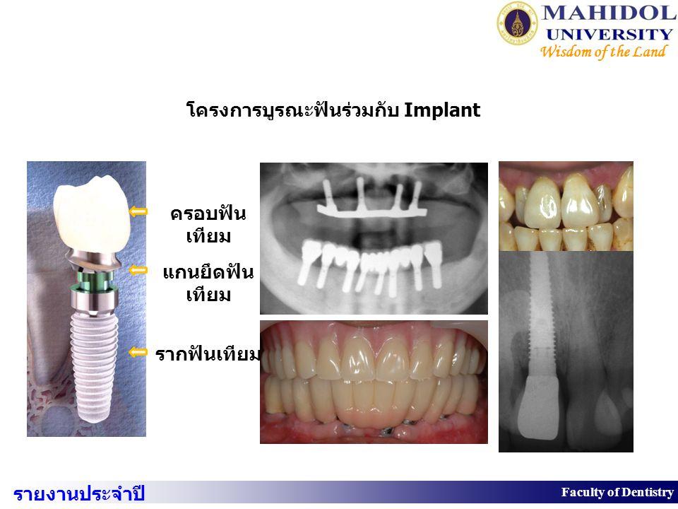 30 Faculty of Dentistry Wisdom of the Land ครอบฟัน เทียม แกนยึดฟัน เทียม รากฟันเทียม โครงการบูรณะฟันร่วมกับ Implant รายงานประจำปี 2550