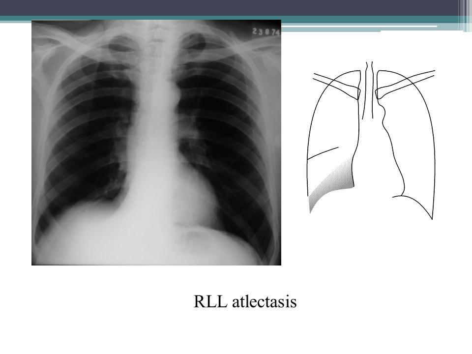 RLL atlectasis