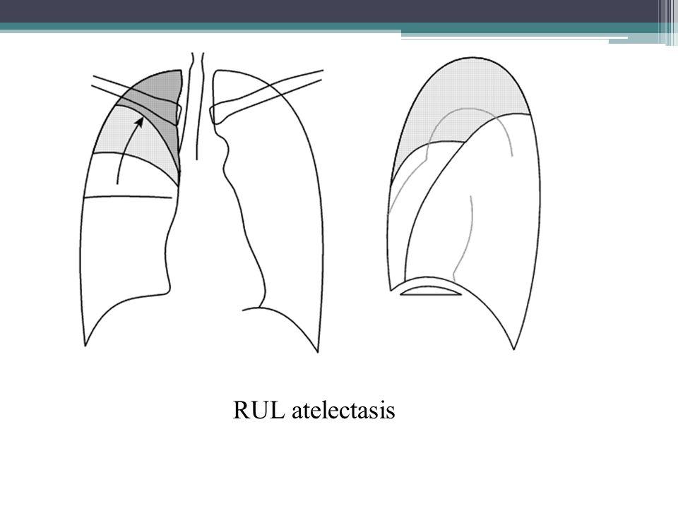 Discoid Atelectasis