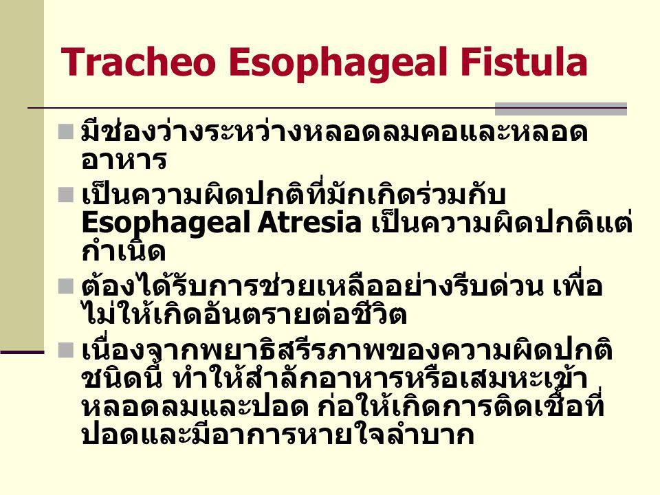 T.E Fistula (ต่อ)  อาการและอาการแสดงที่สำคัญ คือ  มีน้ำลายมากหรือน้ำลายฟูมปาก  เมื่อดูดน้ำจะมีอาการสำลัก ไอ เขียว และหยุดหายใจได้  ท้องป่องเนื่องจากมีลมผ่านเข้าไปใน กระเพาะอาหารและลำไส้  การรักษา ผ่าตัดอย่างรีบด่วน  ภาวะแทรกซ้อนที่สำคัญและพบบ่อย คือ ปอดอักเสบ การกลืนลำบาก