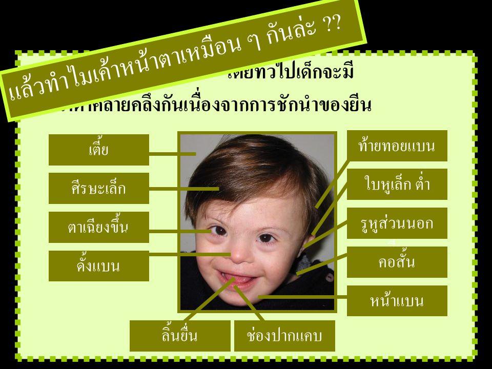 โดยทั่วไปเด็กจะมี....................... หน้าตาคล้ายคลึงกันเนื่องจากการชักนำของยีน แล้วทำไมเค้าหน้าตาเหมือน ๆ กันล่ะ ?? เตี้ย ศีรษะเล็ก ท้ายทอยแบน หน้