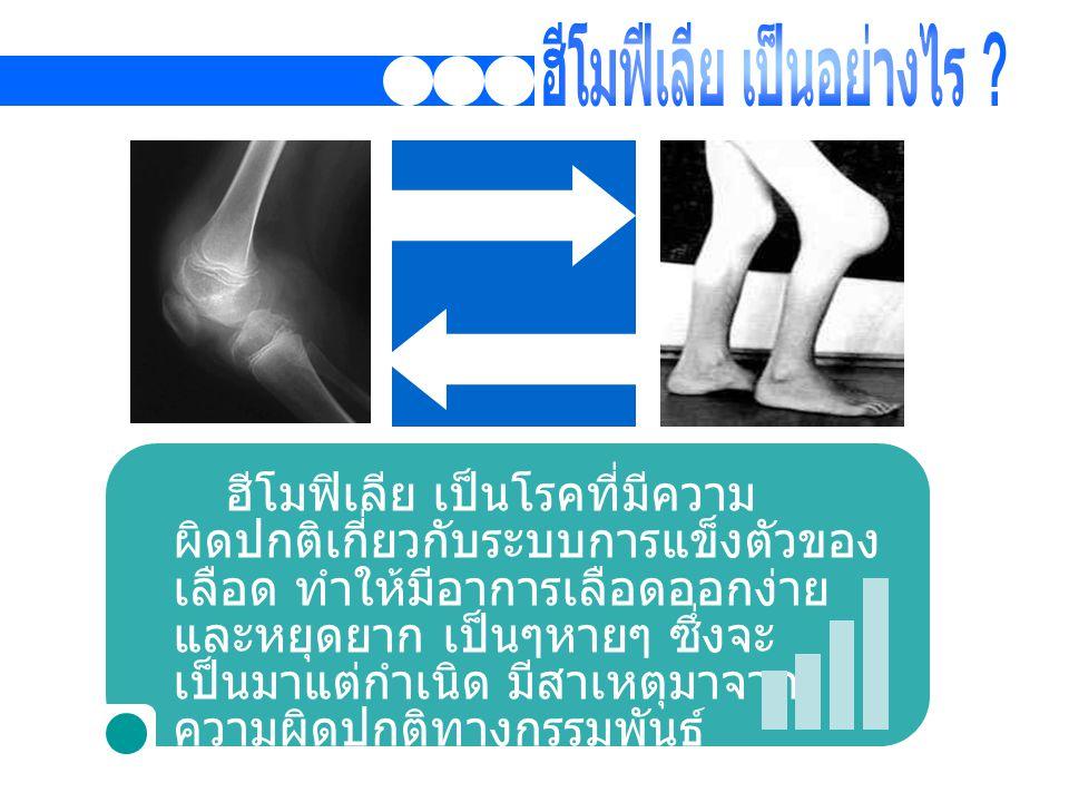 ฮีโมฟิเลีย เป็นโรคที่มีความ ผิดปกติเกี่ยวกับระบบการแข็งตัวของ เลือด ทำให้มีอาการเลือดออกง่าย และหยุดยาก เป็นๆหายๆ ซึ่งจะ เป็นมาแต่กำเนิด มีสาเหตุมาจาก