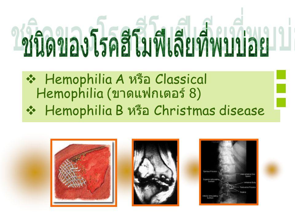  Hemophilia A หรือ Classical Hemophilia ( ขาดแฟกเตอร์ 8)  Hemophilia B หรือ Christmas disease