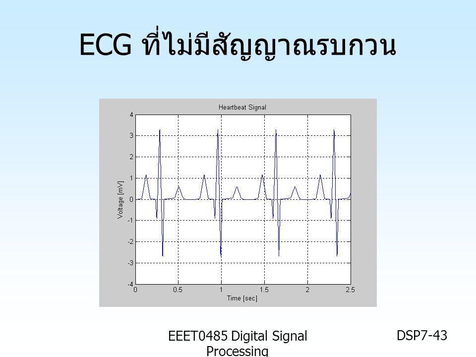 EEET0485 Digital Signal Processing DSP7-43 ECG ที่ไม่มีสัญญาณรบกวน
