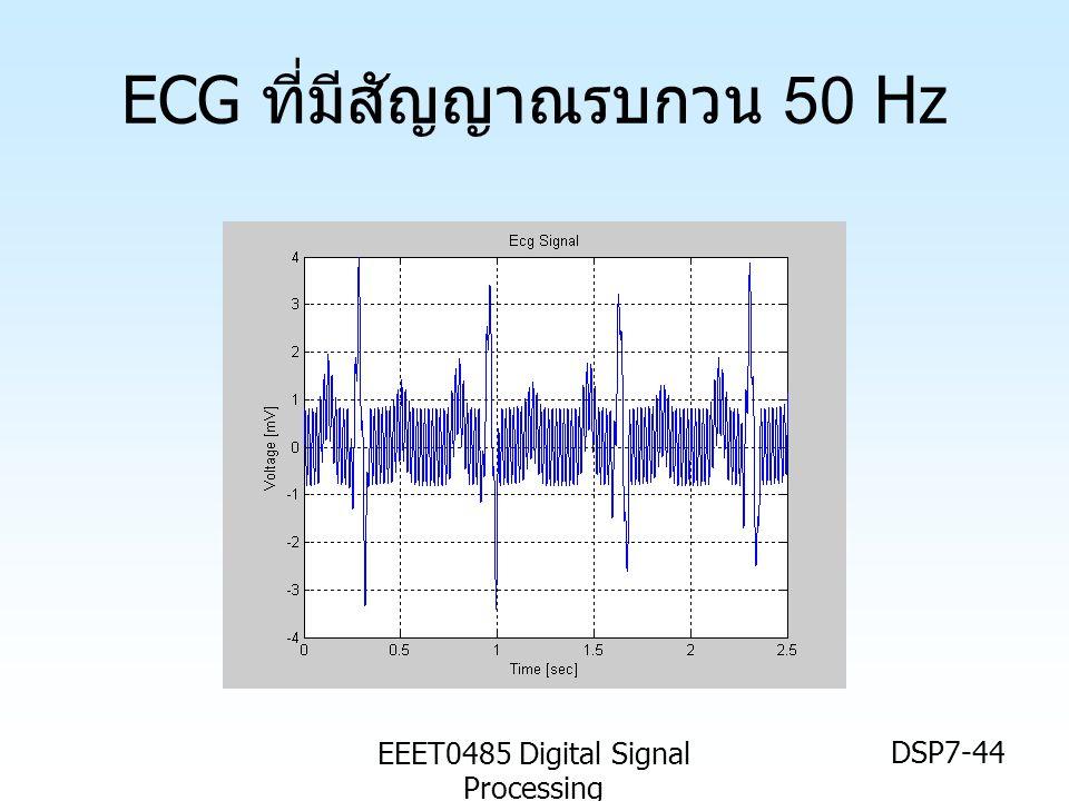 EEET0485 Digital Signal Processing DSP7-44 ECG ที่มีสัญญาณรบกวน 50 Hz