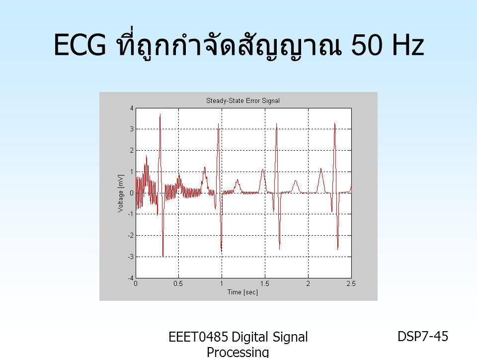 EEET0485 Digital Signal Processing DSP7-45 ECG ที่ถูกกำจัดสัญญาณ 50 Hz