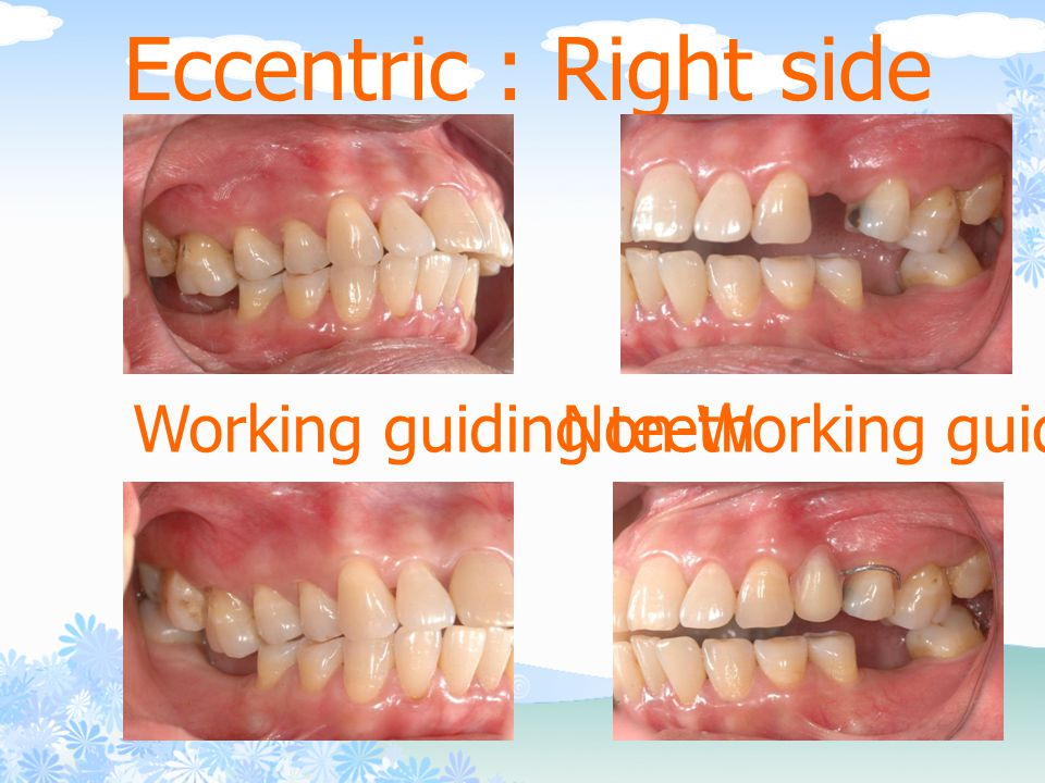 Eccentric : Right side Working guiding teethNon-Working guiding teeth