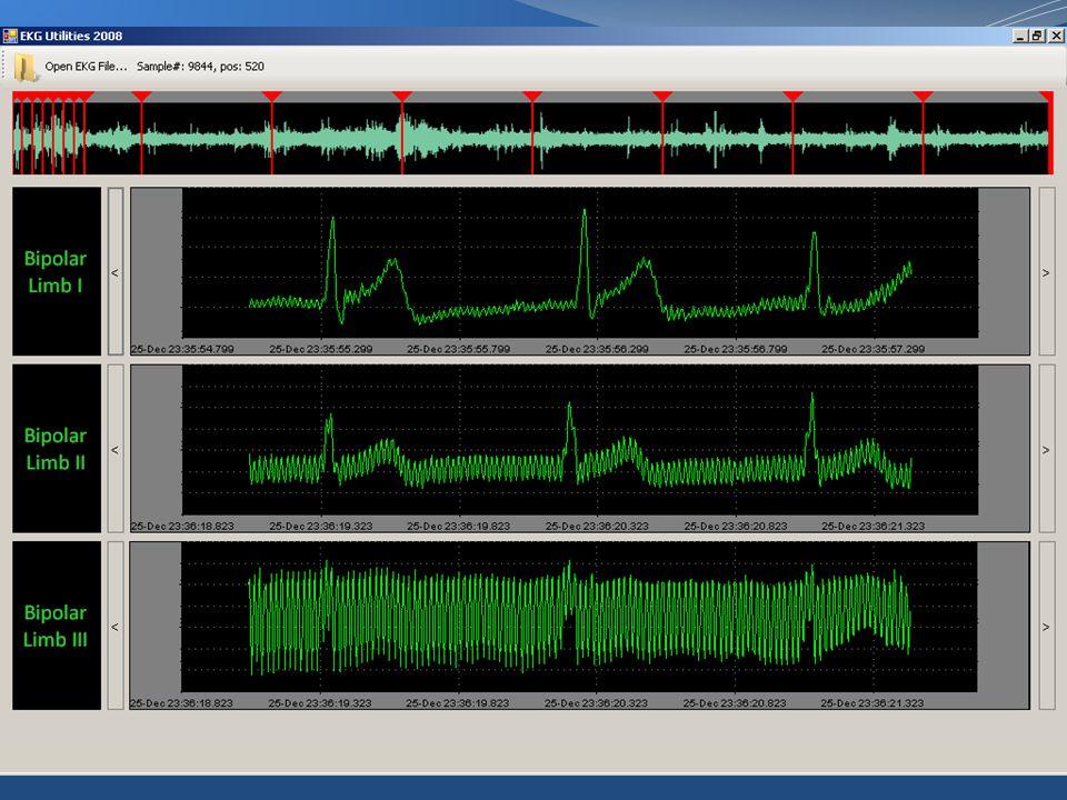 การรับส่งข้อมูลผ่าน FTP UploadDownload  ใช้.NET FtpWebRequest / FtpWebResponse โดยดัดแปลงโปรแกรมบางส่วนจาก นายกรวิษณ์ จั่นทอง
