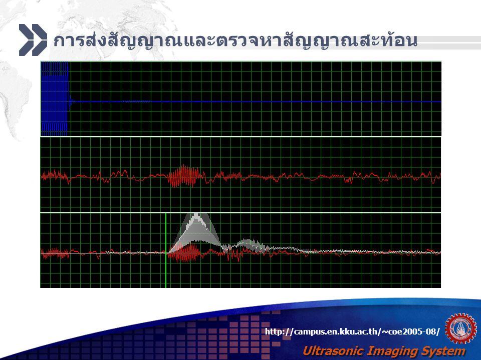 Ultrasonic Imaging System http://campus.en.kku.ac.th/~coe2005-08/ การส่งสัญญาณและตรวจหาสัญญาณสะท้อน