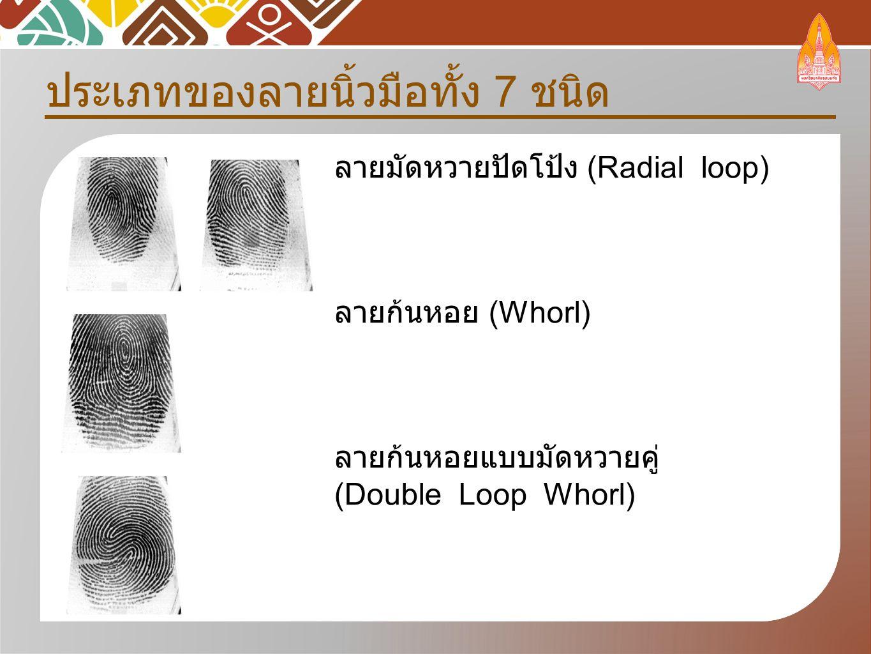 ประเภทของลายนิ้วมือทั้ง 7 ชนิด ลายมัดหวายปัดโป้ง (Radial loop) ลายก้นหอย (Whorl) ลายก้นหอยแบบมัดหวายคู่ (Double Loop Whorl)