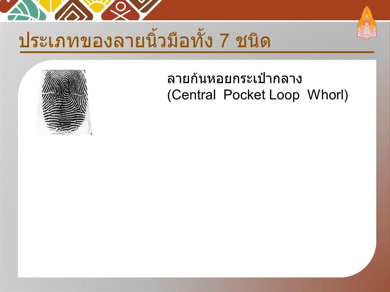 ประเภทของลายนิ้วมือทั้ง 7 ชนิด ลายก้นหอยกระเป๋ากลาง (Central Pocket Loop Whorl)