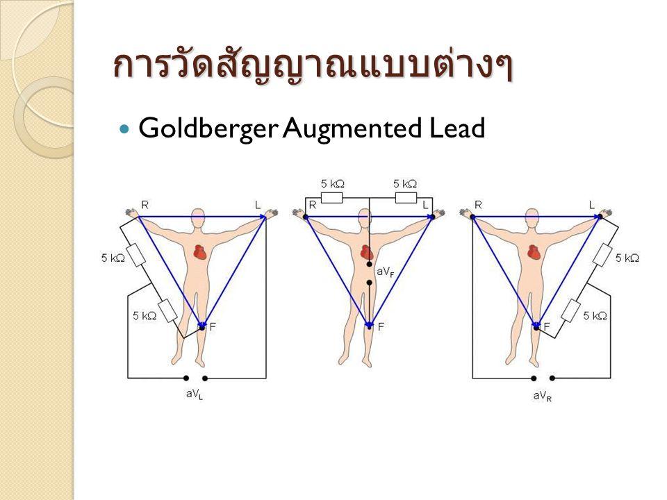 การวัดสัญญาณแบบต่างๆ  Goldberger Augmented Lead