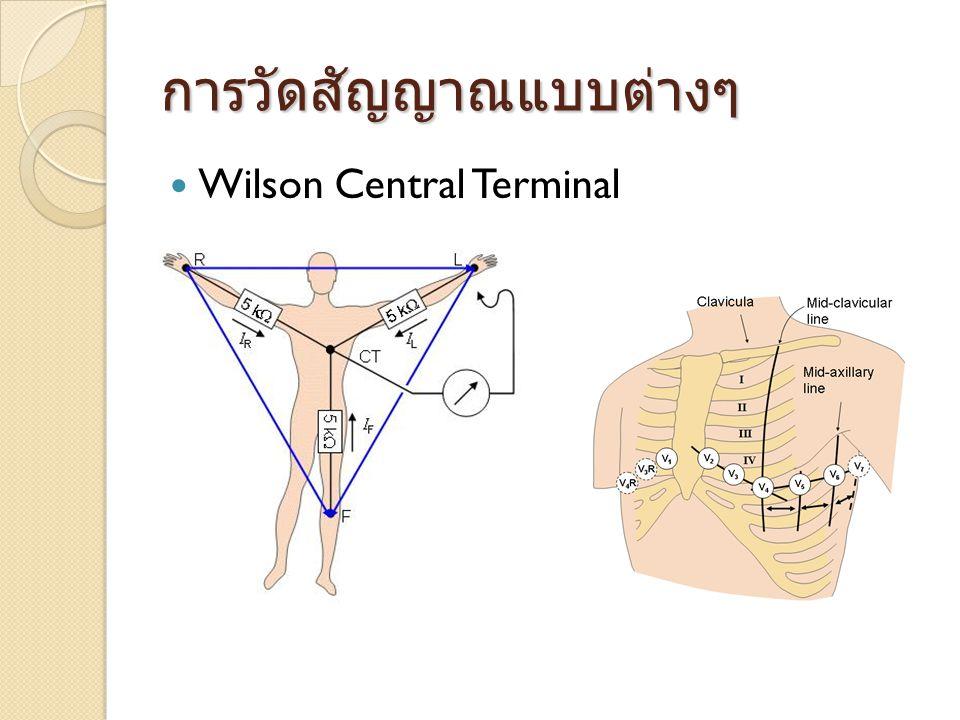 การวัดสัญญาณแบบต่างๆ  Wilson Central Terminal