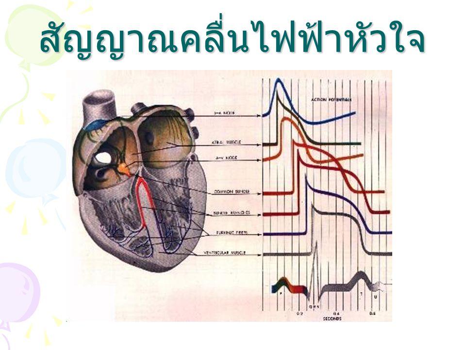 สัญญาณคลื่นไฟฟ้าหัวใจ