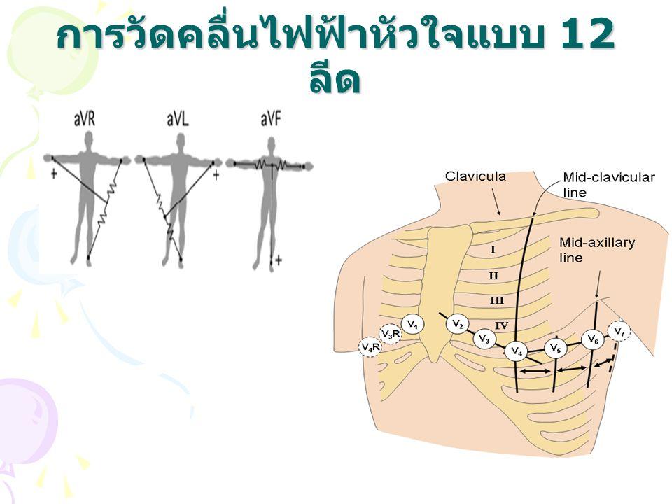 การวัดคลื่นไฟฟ้าหัวใจแบบ 12 ลีด