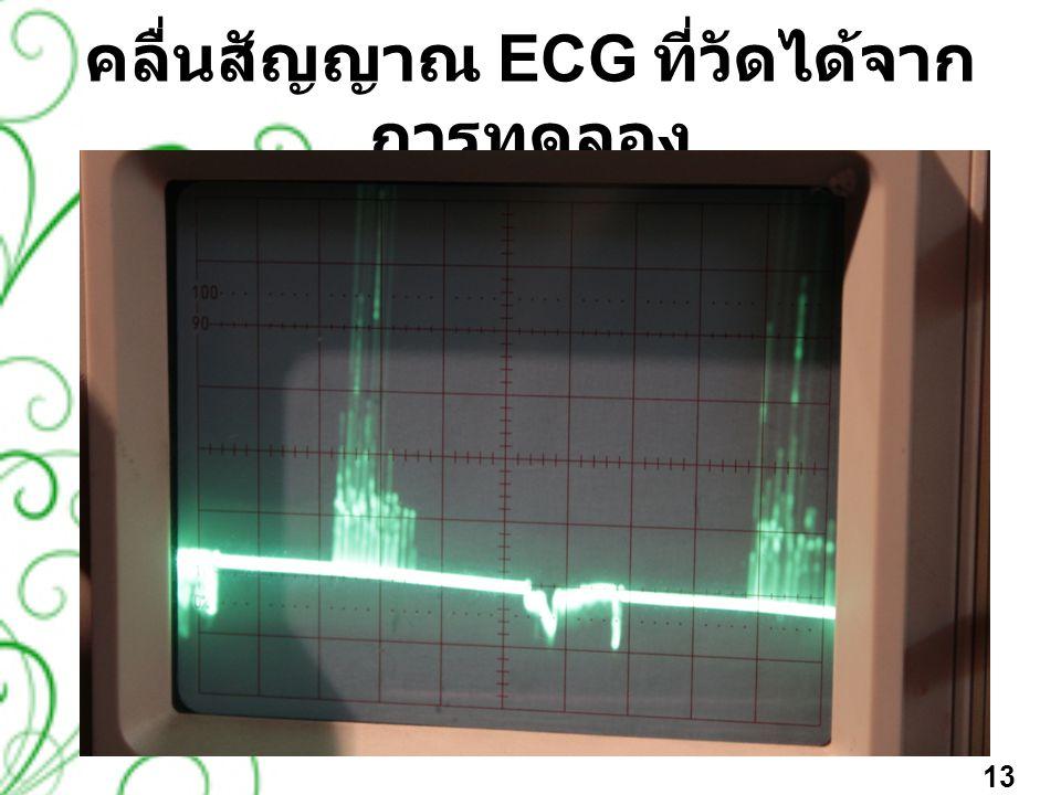 คลื่นสัญญาณ ECG ที่วัดได้จาก การทดลอง 13