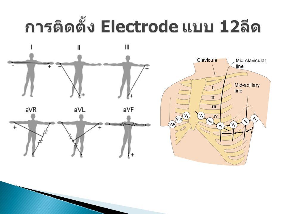 การติดตั้ง Electrode แบบ 12 ลีด