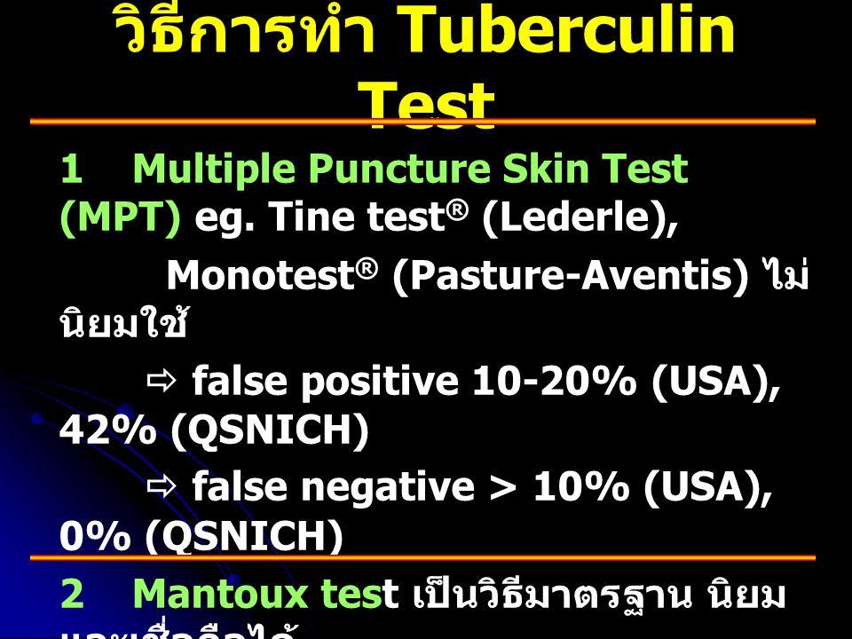 วิธีการทำ Tuberculin Test 1 Multiple Puncture Skin Test (MPT) eg. Tine test ® (Lederle), Monotest ® (Pasture-Aventis) ไม่ นิยมใช้  false positive 10-