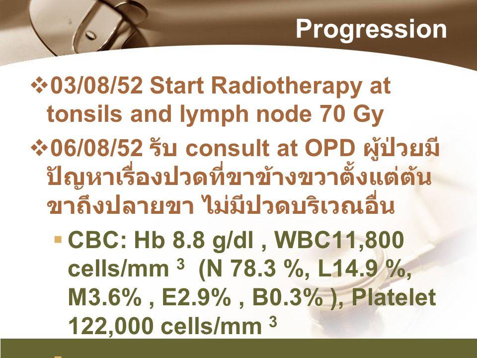 Progression  03/08/52 Start Radiotherapy at tonsils and lymph node 70 Gy  06/08/52 รับ consult at OPD ผู้ป่วยมี ปัญหาเรื่องปวดที่ขาข้างขวาตั้งแต่ต้น