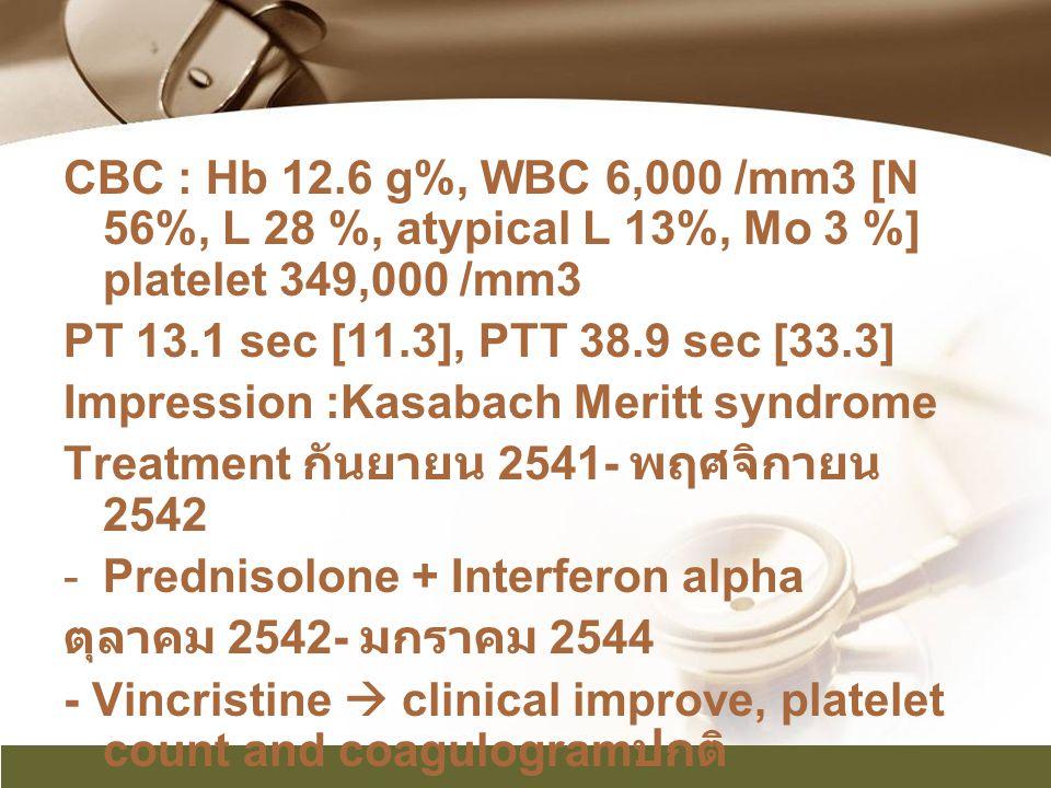 CBC : Hb 12.6 g%, WBC 6,000 /mm3 [N 56%, L 28 %, atypical L 13%, Mo 3 %] platelet 349,000 /mm3 PT 13.1 sec [11.3], PTT 38.9 sec [33.3] Impression :Kas