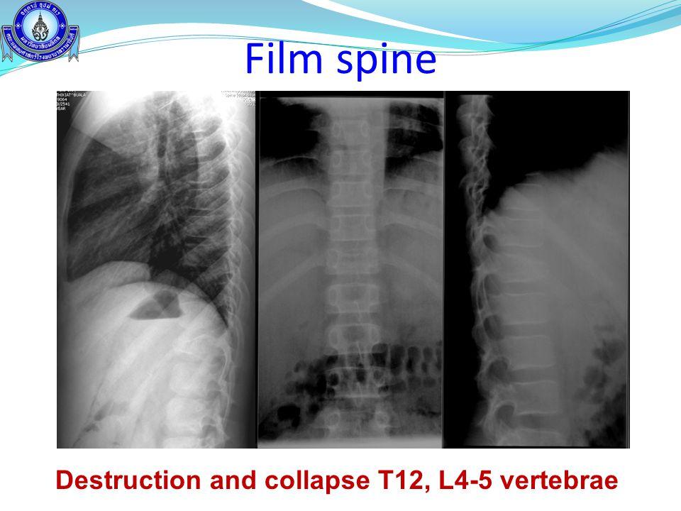 Film spine Destruction and collapse T12, L4-5 vertebrae