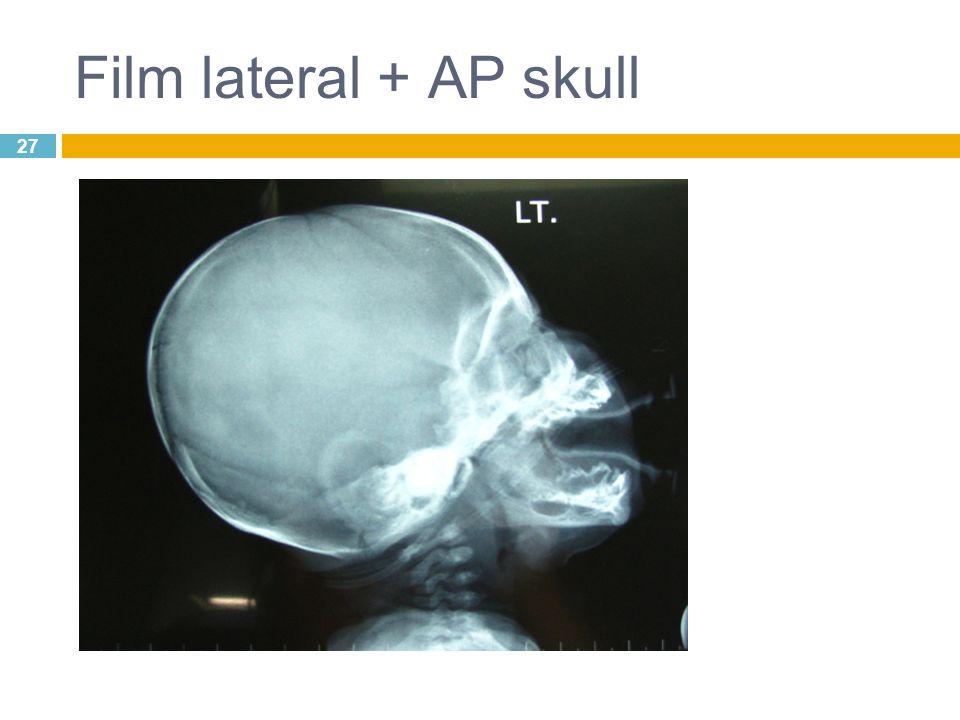 27 Film lateral + AP skull