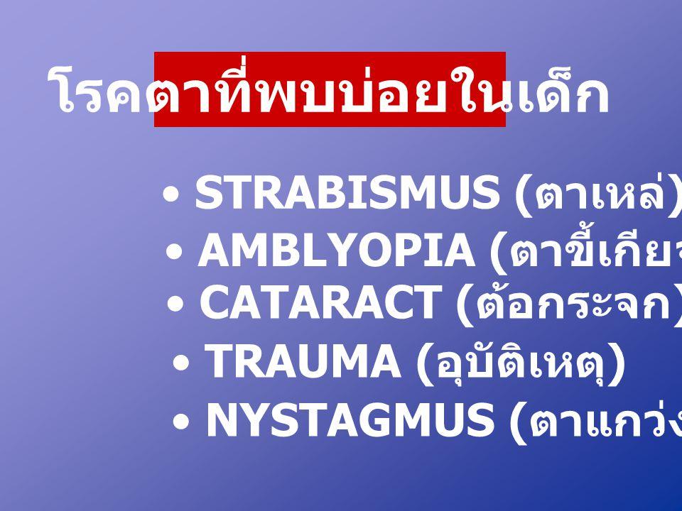 โรคตาที่พบบ่อยในเด็ก • STRABISMUS ( ตาเหล่ ) • AMBLYOPIA ( ตาขี้เกียจ ) • CATARACT ( ต้อกระจก ) • TRAUMA ( อุบัติเหตุ ) • NYSTAGMUS ( ตาแกว่ง )