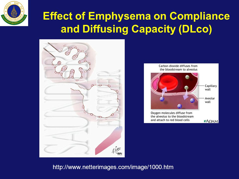 Effect of Emphysema on Compliance and Diffusing Capacity (DLco) http://www.netterimages.com/image/1000.htm