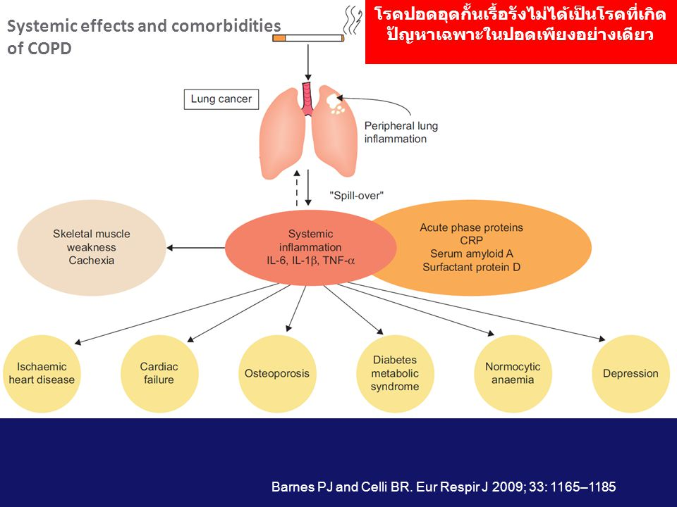 Definition • Systemic effects extrapulmonary manifestations which is the consequence of COPD • Comorbidities highly prevalent diseases in COPD (e.g.