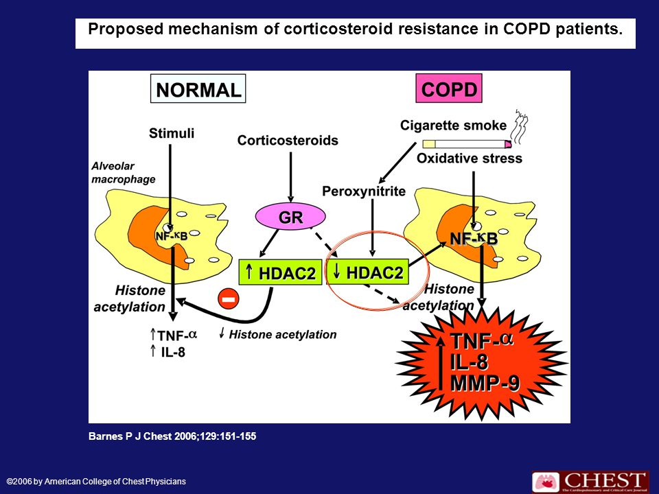 Proposed mechanism of corticosteroid resistance in COPD patients. Barnes P J Chest 2006;129:151-155 ©2006 by American College of Chest Physicians