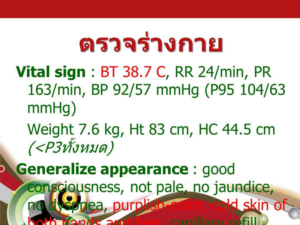 ตรวจร่างกาย Vital sign : BT 38.7 C, RR 24/min, PR 163/min, BP 92/57 mmHg (P95 104/63 mmHg) Weight 7.6 kg, Ht 83 cm, HC 44.5 cm (<P3 ทั้งหมด ) Generali