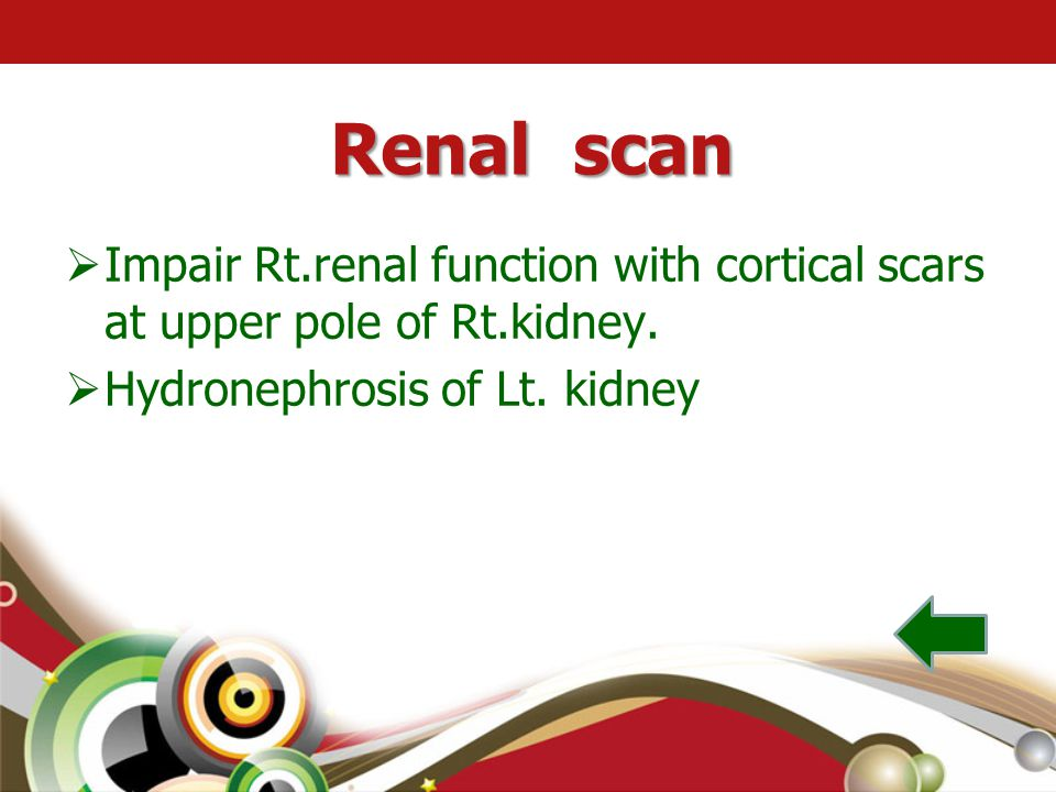 Renal scan  Impair Rt.renal function with cortical scars at upper pole of Rt.kidney.  Hydronephrosis of Lt. kidney
