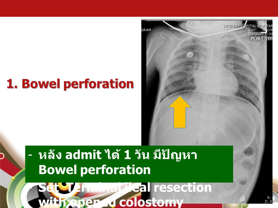 1. Bowel perforation - หลัง admit ได้ 1 วัน มีปัญหา Bowel perforation -Set Terminal ileal resection with opened colostomy