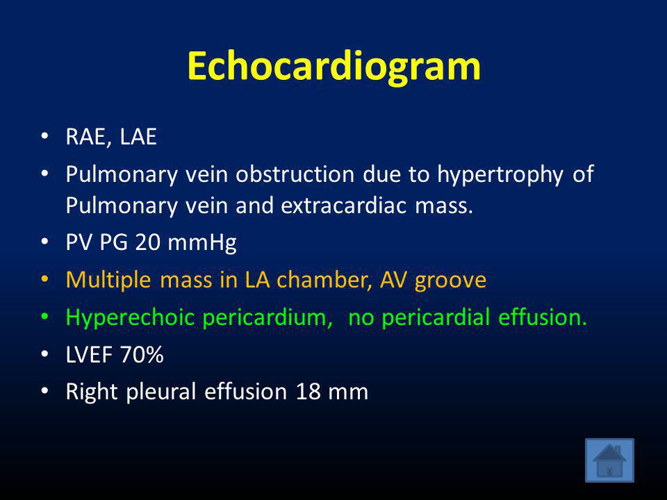 Echocardiogram • RAE, LAE • Pulmonary vein obstruction due to hypertrophy of Pulmonary vein and extracardiac mass.